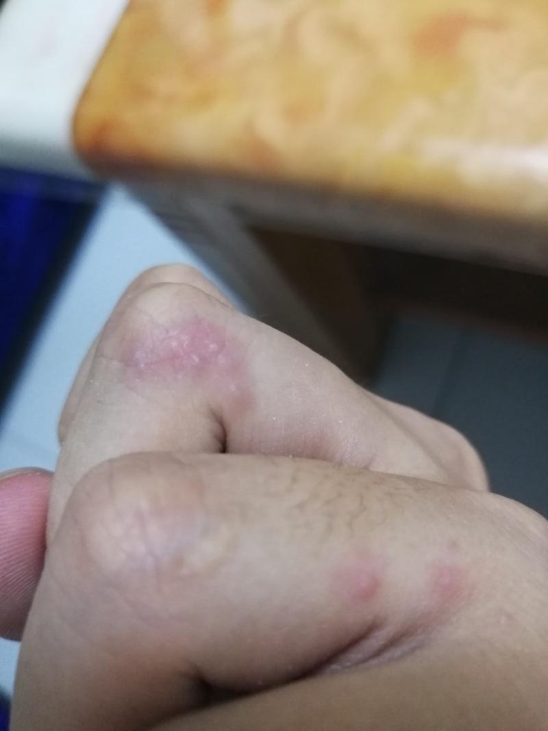 湿疹 種類 写真